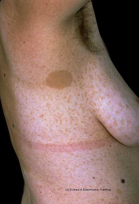 Pics For > Neurofibromatosis Type 1 Axillary Freckling